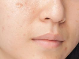 best pimple marks removal cream for face and skin