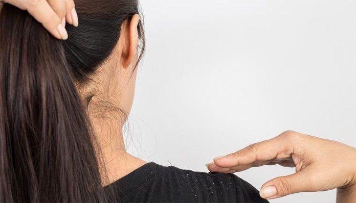 best anti dandruff shampoo for oily scalp and hair